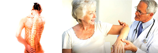 лечение остеопороза, лечение артрита