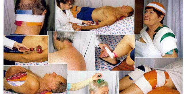инсульт лечение