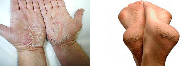 лечение воспалений кожи