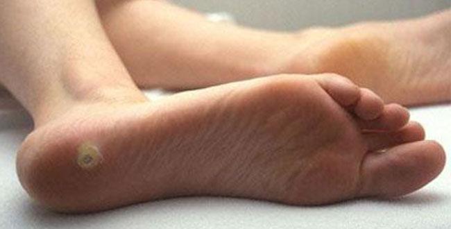 Шип на ступне лечение в домашних условиях 172