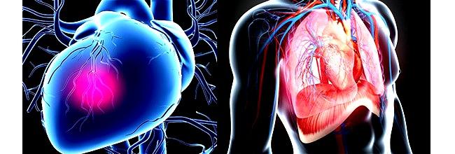 лечение ишемии, лечение заболеваний легких