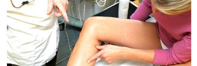 лечение варикозного расширения вен