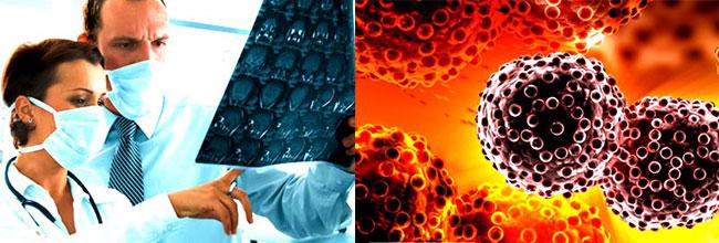 лечение онкологических заболеваний