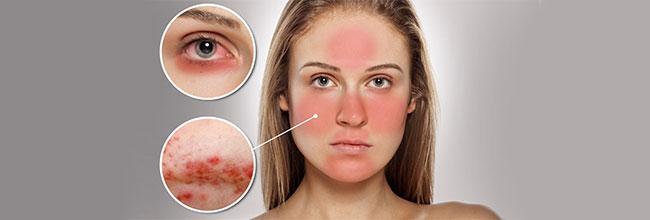 лечение псориаза лечение дерматита