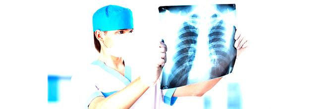 лечение туберкулеза