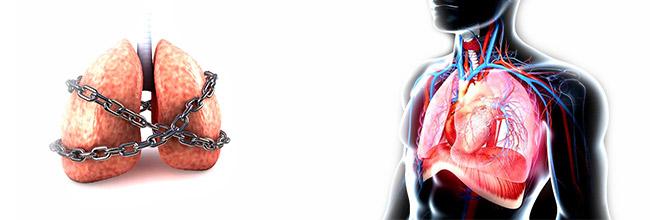 лечение легких