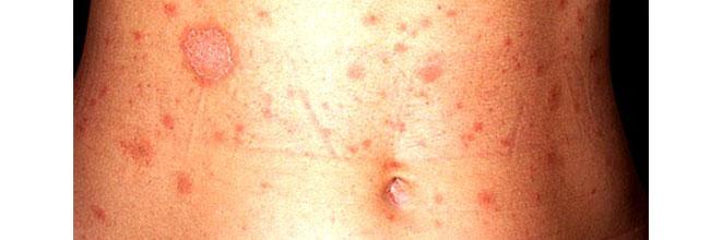 лечение псориаза и дерматита