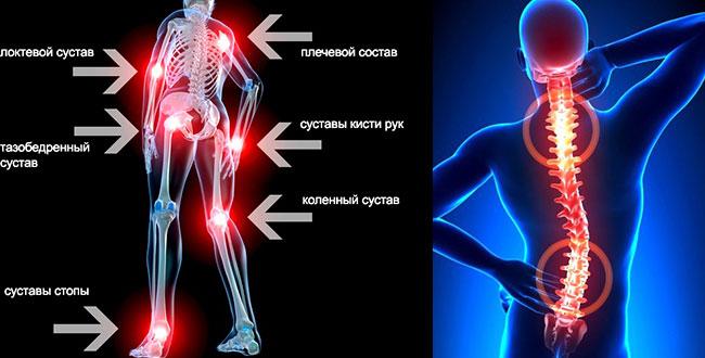 лечение остехондроза