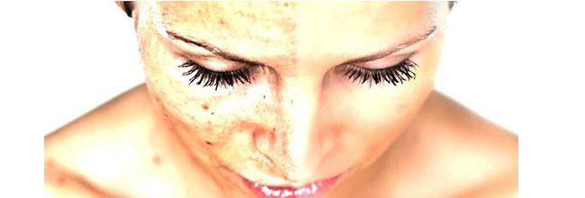 воспаление кожи