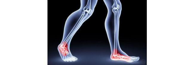 боли в ногах лечение