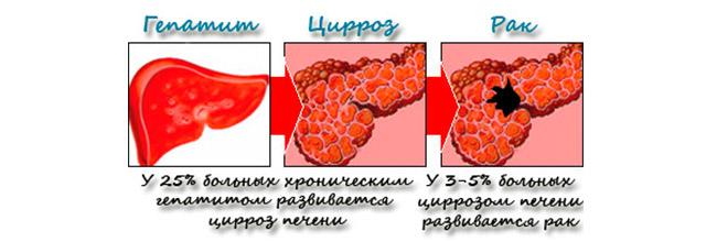 лечение печени