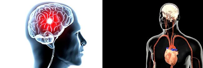 лечение головного мозга