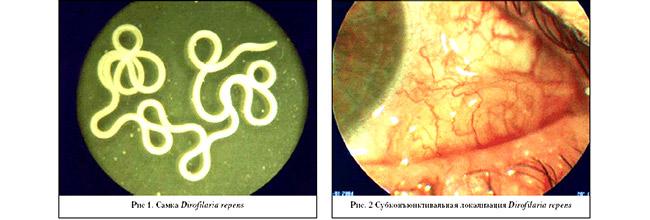 паразиты симптомы лечение