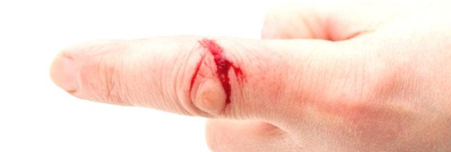 лечение ран кожи